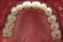 Ceratura diagnostica provata nel cavo orale (Gherlone)