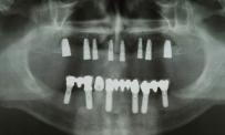 Radiografia di protesi fissa su impianti arcata inferiore ed impianti inseriti Arcata superiore in attesa di protesizzazione (casistica Gherlone-zandonella)