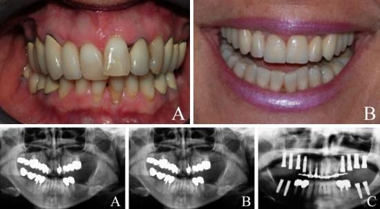 Riabilitazione orale eseguita per mezzo di prelievo osseo da teca cranica: (A) condizioni orali prima della riabilitazione e (B) a riabilitazione ultimata; referti radiografici del caso prima dell'inizio della riabilitazione (A), a seguito dell'intervento di aumento del volume osseo mascellare (B) e a seguito del posizionamento degli impianti (C). (Casistica Gherlone-Vinci in collaborazione con laboratorio odontotecnico Lazetera)